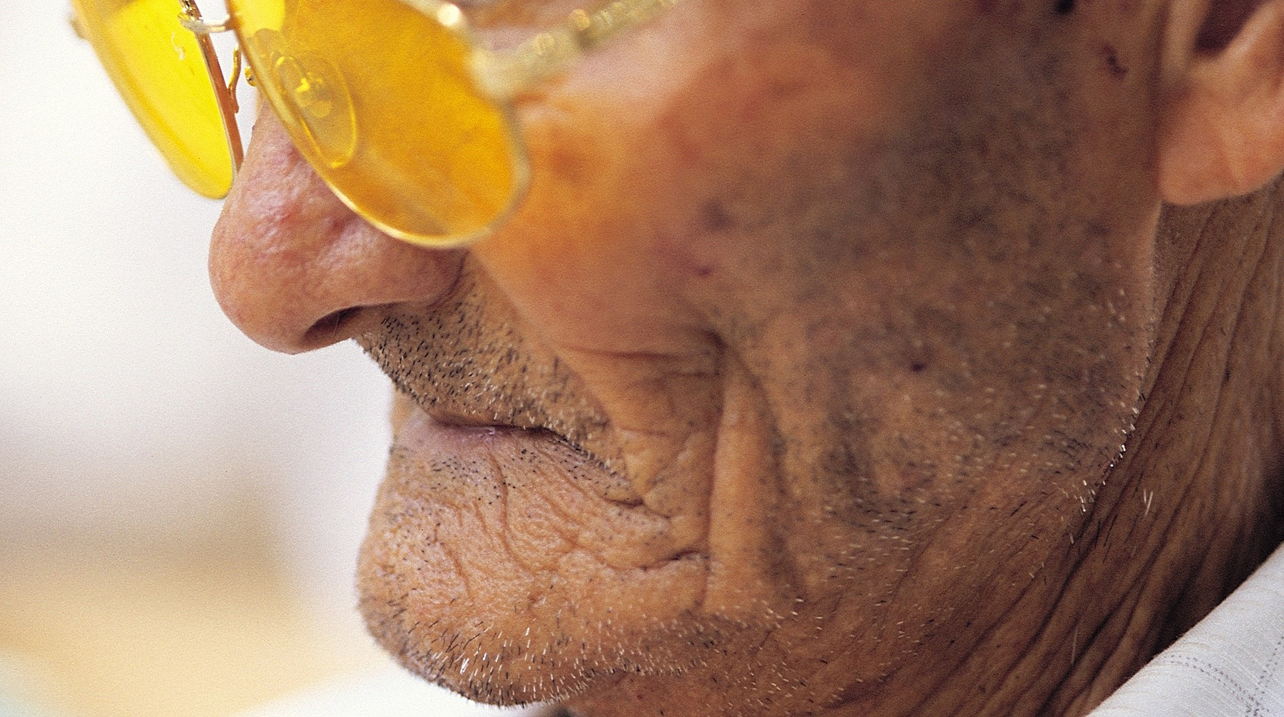 Elderly Man's Nose